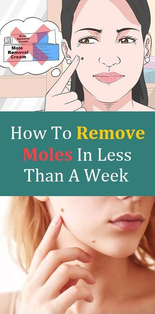 How To Remove Moles In Less Than A Week Picsofmolesonskin Mole Removal Skin Moles Mole Removal Cream