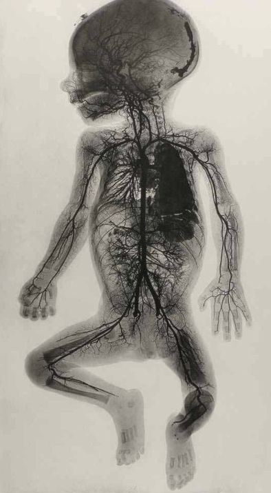 Blood vessels of a baby.
