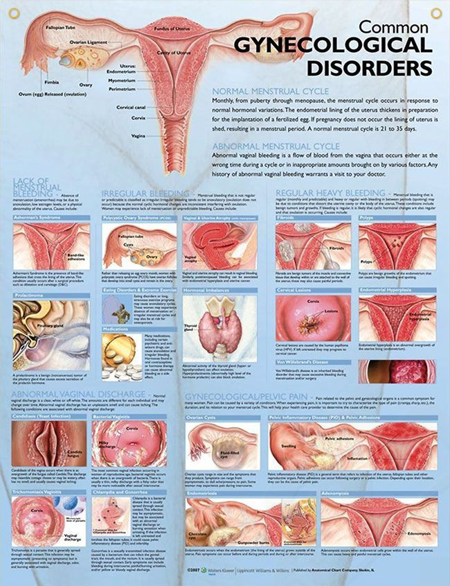 Gynecological Disorders anatomy poster defines menstrual cycles, abnormal vaginal discharge and regional pain.