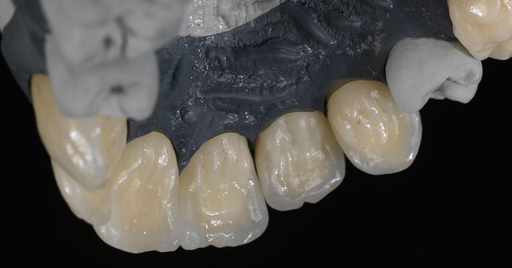 Stay flexible - also with preshaded material https://blog.ceramill.com/posts/22-stay-flexible-also-with-preshaded-material