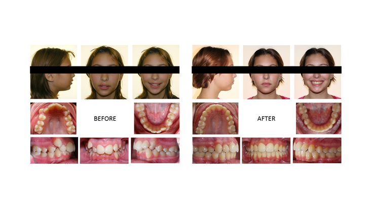 Best 25 Braces Before And After Ideas On Pinterest