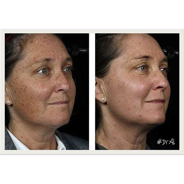 Do the brown spots on your face bother you? We have a solution! Call today to schedule your FREE consultation at 305-608-4922  #DrAl #relaxspa #wellness #health #skincare #rejuvenation #laser #miami