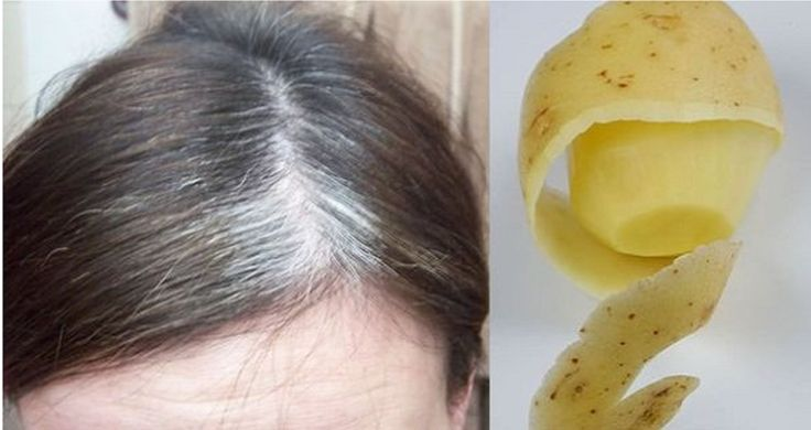 You Can Get Rid Of White Hair With Only One Ingredient!  Potato peels???  Dont know if this works...but here ya go!!