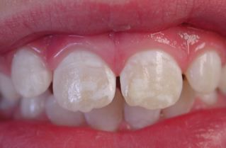 White Spots on Teeth Could Mean Celiac Disease   Teeth could be Telling you that you have a Disease