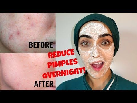 How to Remove Pimples OVERNIGHT | Reduce Pimple Size + Redness INSTANTLY