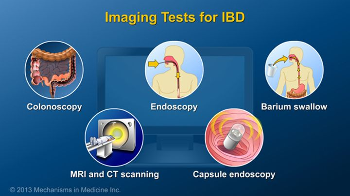 Colonoscopy with examination of the large intestine and the last part of the small intestine is an essential test for making the diagnosis of IBD and for assessing disease activity.  Imaging tests also assist in the diagnosis of IBD. These include endoscopy, barium studies of the small intestine, cross-sectional imaging with magnetic resonance imaging (MRI) and computed tomography (CT), and capsule endoscopy.slide show: diagnosing ibd. no single test can diagnose or rule out inflammatory…