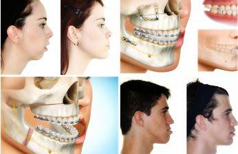 Cirugía Ortognática (Maxilofacial)  http://www.retoqueestetico.com/cirugia-ortognatica-maxilof…/ #Cirugía #ortognática #Maxilofacial #foro #saludybelleza #tips #consejos #fotos
