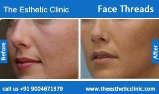 Face Thread Lift Surgery | Facial Threads Face lift Surgery in Mumbai, India.