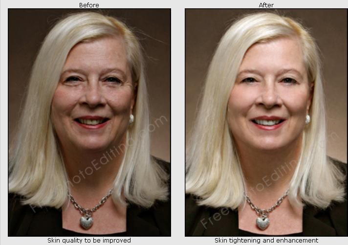 Virtual Wrinkles Removal Sagging Jowls And Double Chin Correction Our Retouch Artists Can Make You Look Younger And More Attr Look Younger Facial Skin Facial