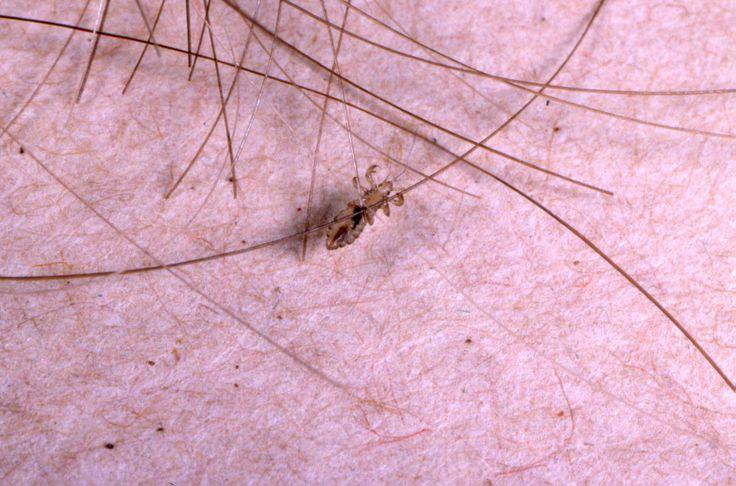 head lice   head-lice   NIT HEADS