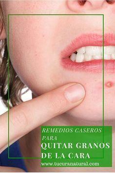 Cómo quitar granos de la cara con remedios caseros, estos ingredientes naturales mejorarán la apariencia de tu rostro eliminando las molestas espinillas