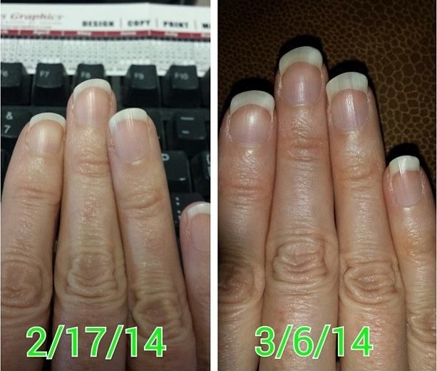 And It Works Hair Skin Nails Results
