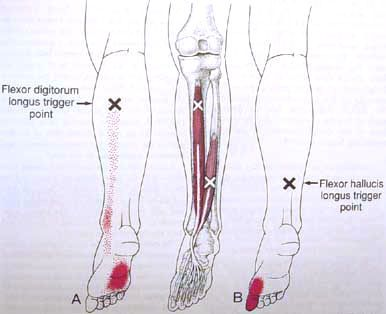 Trigger Point Diagrams