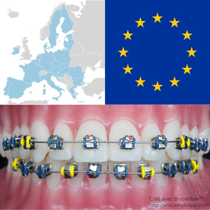 The 9th of May is the EU's flag day. Bracemate is available in 10 out of 24 official EU langauges!   #EuropeanUnion #Europe #EU #Croatian #Dutch #English #French #German #Greek #Italian #Portuguese #Spanish #Swedish #Ortodoncija #Orthodontie #Orthodontics #kieferorthopädie #Orthodontiki #Ortodonzia #Ortodontia #Ortodoncia #Ortodonti #Braces