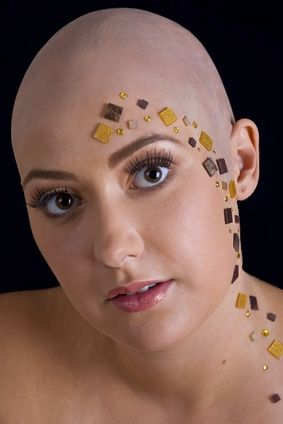 32 Best Images About Alopecian Beauty On Pinterest