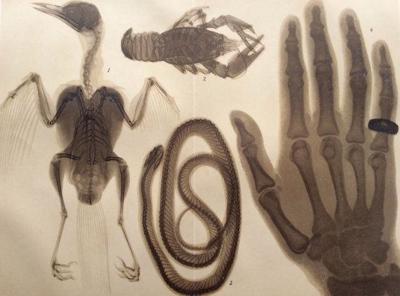 Vintage 1920s X RAY RONTGEN Chromolithograph Bookplate Print