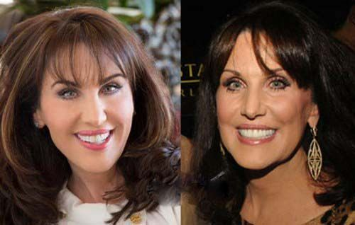 Latest - Robin McGraw Plastic Surgery Before and After Photo, Pictures
