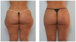 Karboksyterapia przed i po zabiegu