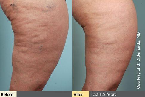 ... : Die Cellulite hat sich sichtbar verringert. Dr. B. DiBernardo Is there a cure?