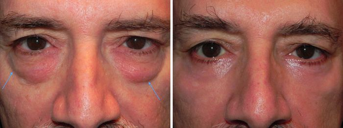 What Causes Dark Circles Under the Eyes | Dark circles ...