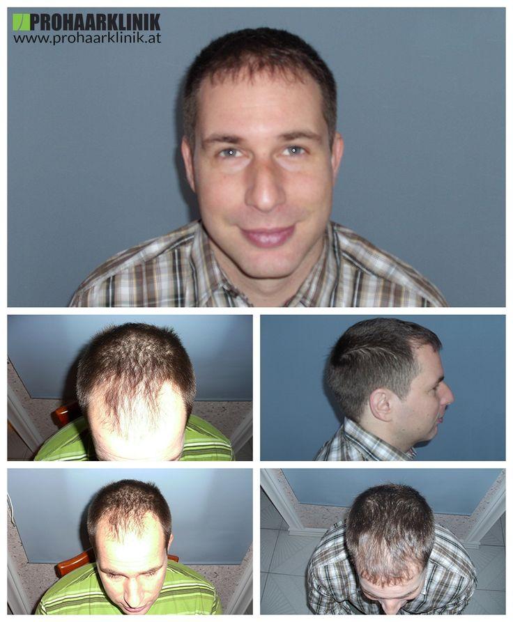 http://www.prohaarklinik.at/haartransplantation-vorher-nachher-bilder/  Dieses Bild zeigt die ausgezeichneten Ergebnisse nach der Haartransplantationen in der ProHAARKlinik Ungarn.  ca. 5.500 verpflanzte Graft-Haare innerhalb einer eineinhalb-tägigen Haartransplantation