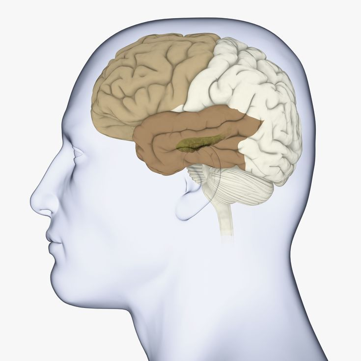 Frontotemporal Dementia (Pick's Disease): Symptoms, Types, Treatments