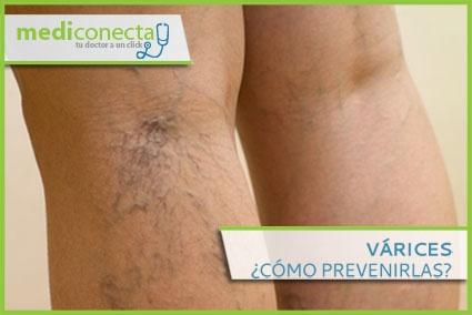 Infórmate de cómo prevenir Las Várices. http://www.mediconecta.com/blog/las-varices-como-prevenirlas/