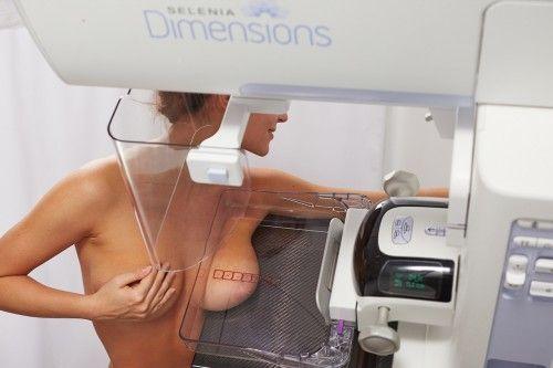 Egy orvos meglepő őszinteséggel beszélt a mammográfiáról. Minden nőnek el kellene olvasni. - Egy az Egyben