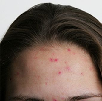 How to Get Rid of Pimples on Forehead?