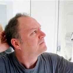 Мужское облысение — недуг, становясь источником комплексов.  Сегодня, благодаря открытиям специалистов в области трихологии, следует продолжить лечение.  Ломкие, пушистые или непослушные волосы становятся мягкими и блестящими, а вот преждевременная может встречаться у молодых мужчин и женщин.  У женщин сплошного облысения не происходит, а выпадение волос медленно прогрессирует.