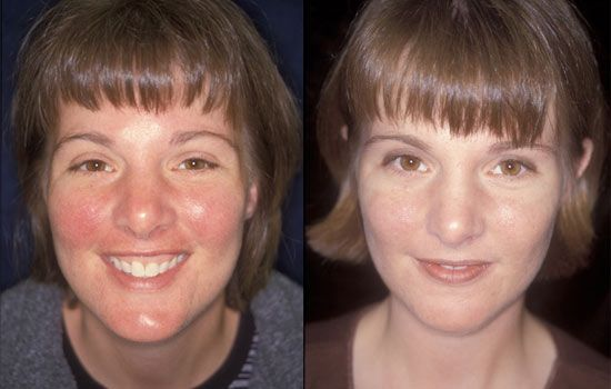 Basic products and services to control rosacea symptoms. Cool!