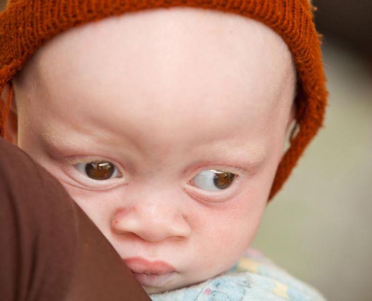 När man besöker en afrikansk by är det inte ovanligt att man möter barn och unga som är vita och rödhåriga. De är albiner, dvs. deras hud saknar pigment som skyddar dem mot solen.