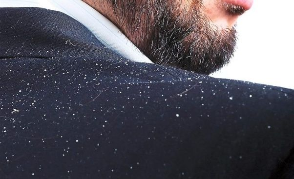 4 Bad Habits That Are Giving You Dandruff Hair Transplant Dubai Clinic Quora Home Remedies For Dandruff Dandruff Hair Dandruff