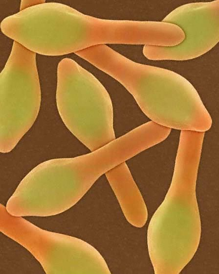 Microorganism: the bacillus Clostridium botulinum, serotypes A and G.    Disease: botulism (food poisoning)