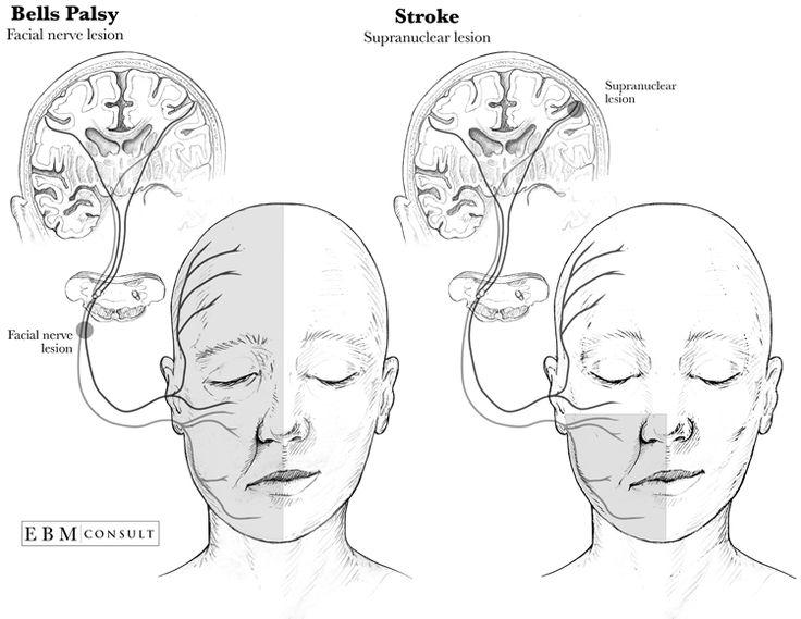 Bells Palsy vs Stroke Anatomy Image