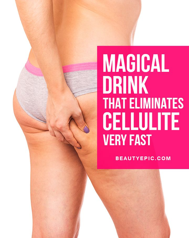 Cellulite is a disorder that ruins the shape of the body. Cellulite discolors the skin and accumulates excess fat in particular area of the body that