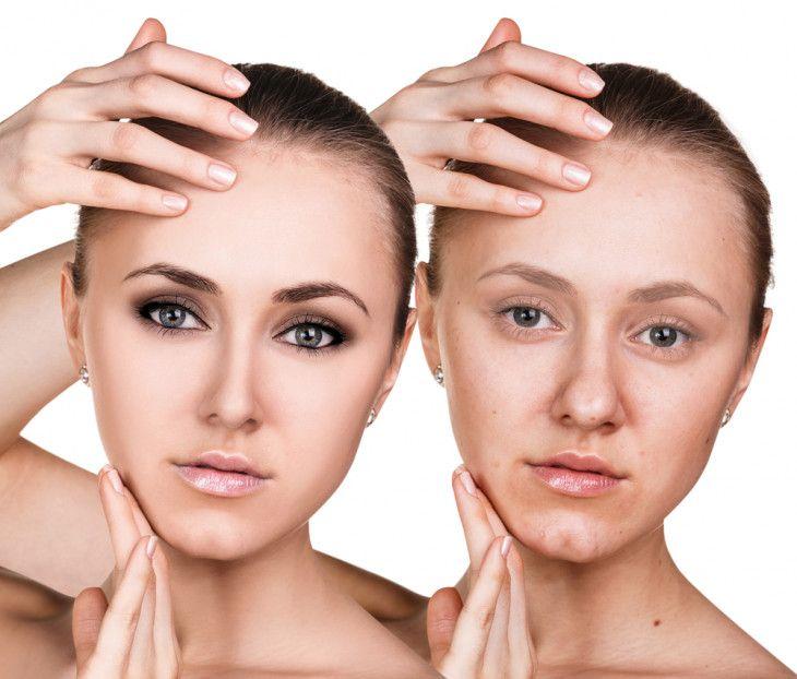 5 Rimedi Naturali (e soprattutto economici) Per Le Macchie E Le Cicatrici Della Pelle   Visto su: http://farlofacile.com/articles/item/10991-strofina-sul-viso-mezzo-spicchio-d-aglio-non-credevo-fosse-cosi-efficace