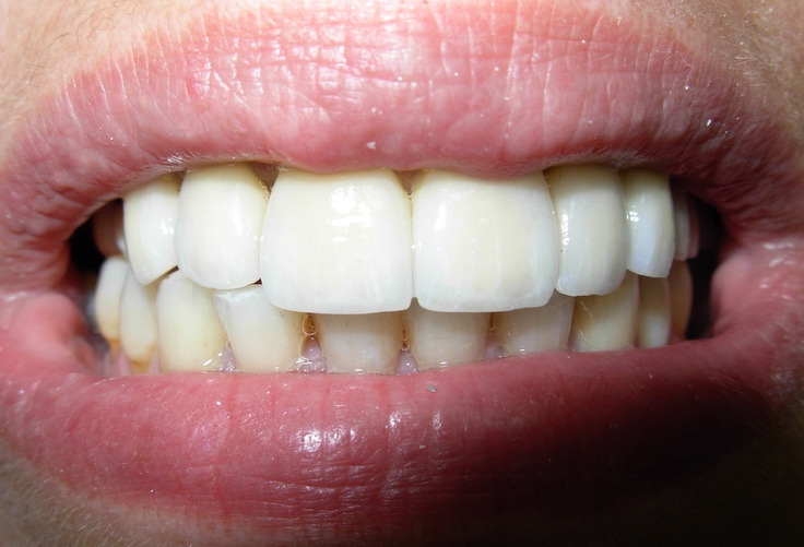 Bruxismo dental finalizado.