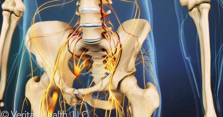 Cauda equina syndrome involves pressure and swelling on the nerves at the end of the spinal cord and can result in paralysis if untreated.