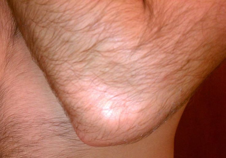 Elbow hematoma: Day 4. Using Fighter Fix 2x / day (morning + night.)  Looks pretty gone to me... back to the heavy bag training.    P.S.  Yes, I'm hairy, I know this.  Stop talking about it.