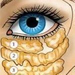 Las arrugas y las bolsas de los ojos desaparecen en 1 semana si antes de dormir…