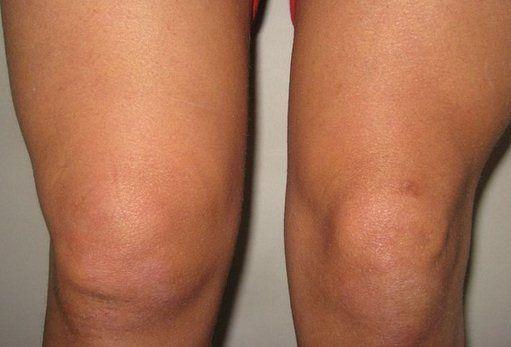 Možná nepotřebujete operaci kolena, třeba stačí ocet a sůl