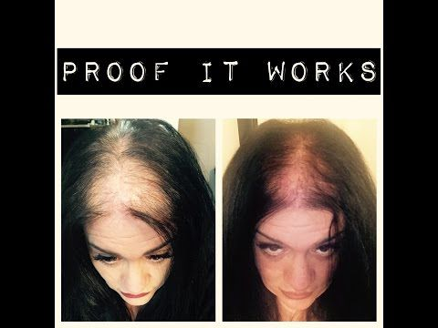 Thin And bald Hair challenge | PICTURE PROOF IT WORKS YAY!!!!!! - YouTube