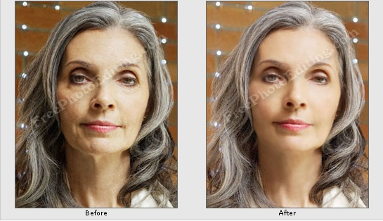 'Before' and 'after' photographs of a woman wanting to look younger. Quick photo editing is free.  http://www.freephotoediting.com/samples/look-younger/001.htm