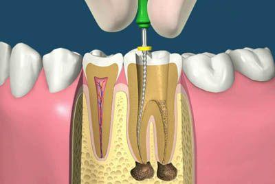 Curs endodontie 2016: Curs de pre-endodontie si ergonomie- ENDO FOCUS SUCEAVA