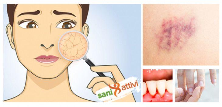 Sintomi e segni che indicano una carenza di Vitamina C