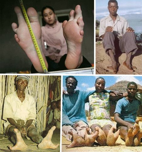 """There is a tribe of people living in Zimbabwe known as the Vadoma, that have become known as the """"Ostritch People"""" for the prevalence of electrodactyly in their population. Many of the tribe members are born with fused toes that appear ostritch like. The tribe maintains a consistent population of such births due to their relative isolation. Those with this condition are not handicapped, and are well integrated into the tribe."""