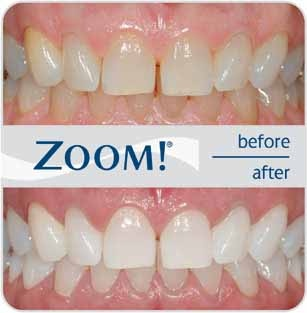 Zoom Whitening  Offering you a perfect smile!