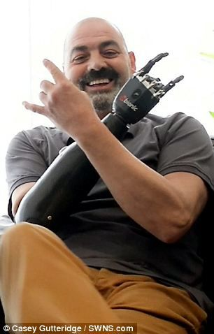 Upgraded: Nigel Ackland with his #bebionic3 #prosthetic limb that has transformed his life.