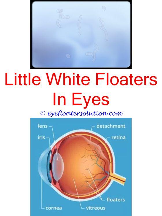 Aspirin And Eye Floaters | Alice in wonderland | Eye